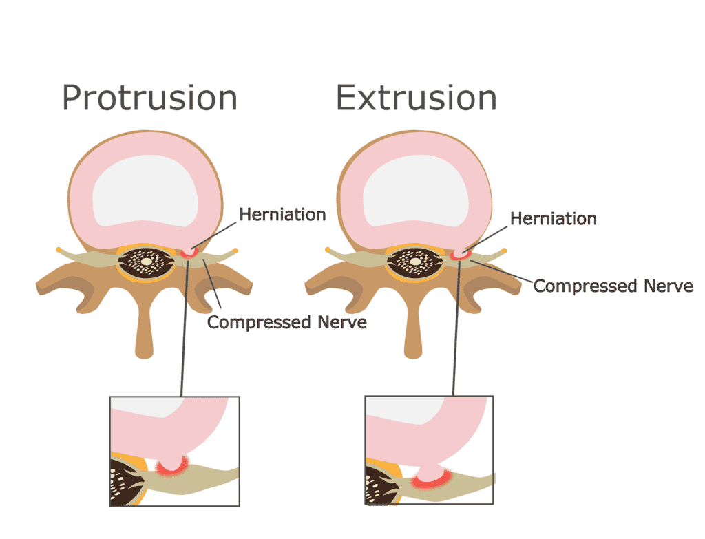 Spinal Disc Extrusion and Protrusion after a Florida Accident